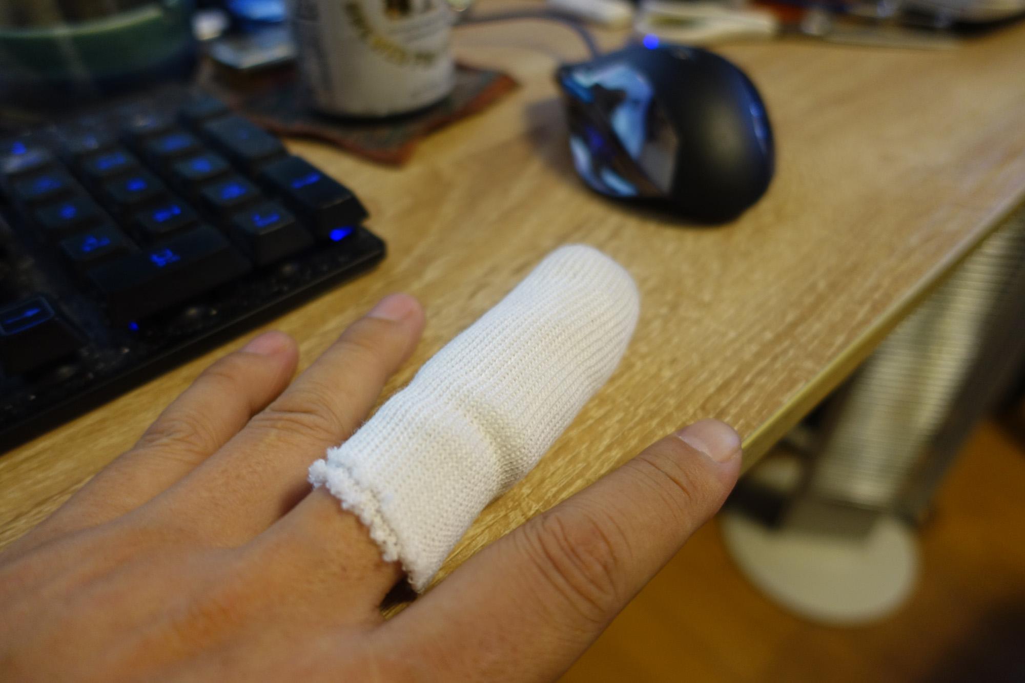 左手中指骨折しておりました。